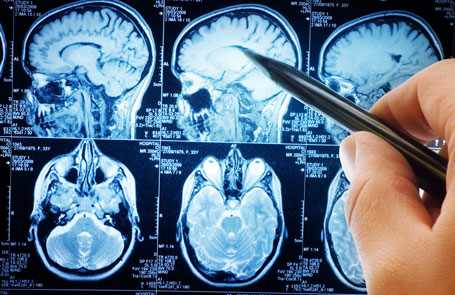 Concussions Are Brain Injuries Sit Your >> Traumatic Brain Injury Concussions Nichols Law Group